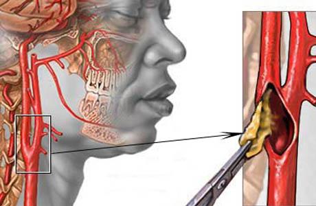 Инсульт ишемический и геморрагический: страдает головной мозг