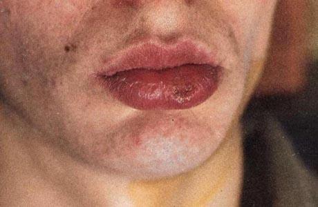 Сифилис считается классическим венерическим заболеванием