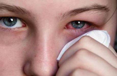 Конъюнктивит считают одной из самых распространенных болезней глаз