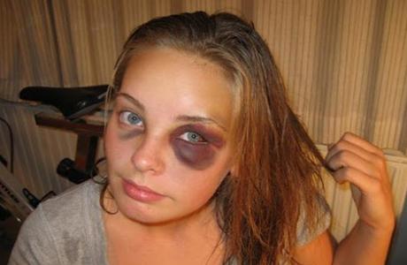 Как поступить при ударах в глаз