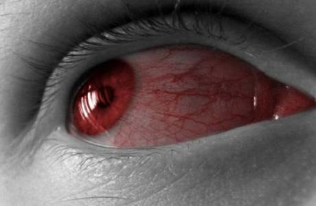 Увеит: характеристика заболевания