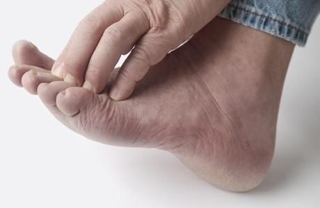 Контактный дерматит: решение проблемы