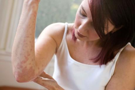 Берегись латексной аллергии