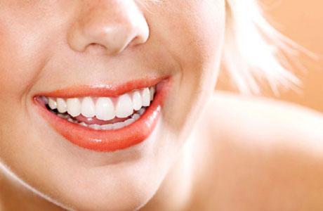 Отбеливание зубов: что думают стоматологи