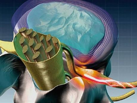 Грыжу межпозвоночного диска лечат операцией